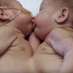 Image of twin baby girls conjoined at the stomach and chest