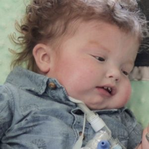 Face of baby boy with a trach